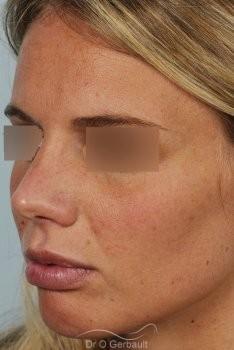Rhinoplastie primaire, Pointe de nez large vue de quart apres