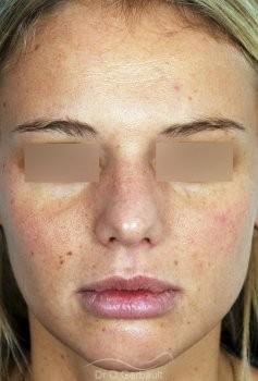 Rhinoplastie primaire, Pointe de nez large vue de face avant