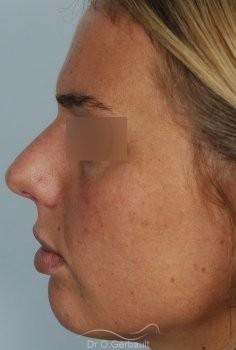Rhinoplastie primaire, Pointe de nez large vue de profil avant