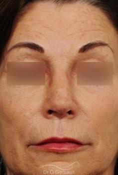 Rhinoplastie secondaire, Remodelage dos et pointe de nez vue de face apres