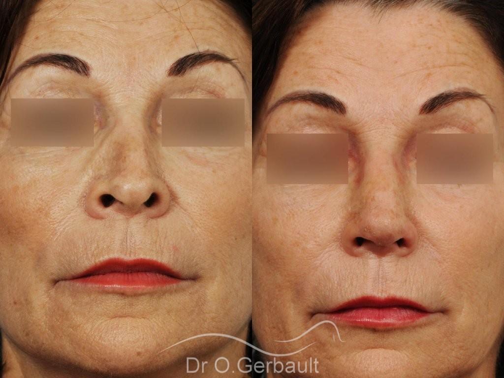 Rhinoplastie secondaire, Remodelage dos et pointe de nez vue de face avant-apres