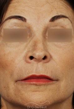Rhinoplastie secondaire, Remodelage dos et pointe de nez vue de face avant