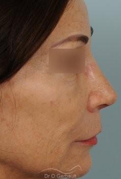 Rhinoplastie secondaire, Remodelage dos et pointe de nez vue de profil apres