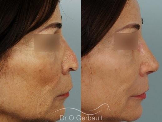 Rhinoplastie secondaire, Remodelage dos et pointe de nez vue de profil avant-apres
