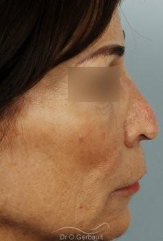 Rhinoplastie secondaire, Remodelage dos et pointe de nez vue de profil avant