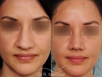 Pointe de nez large et tombante sur peau épaisse vue de face duo