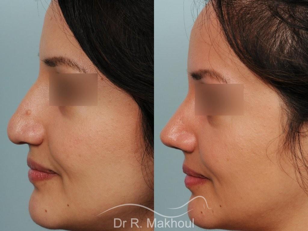 Pointe de nez large et tombante sur peau épaisse vue de profil duo