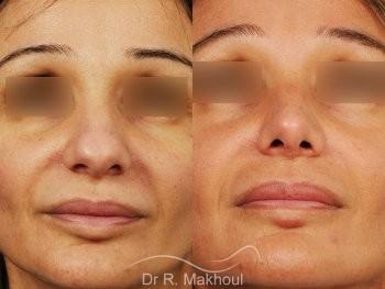 Rhinoplastie structurelle d'affinement sur peau mature vue de face duo