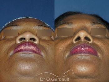 Rhinoplastie structurelle ethnique, Dr Gerbault vue de face avant-apres