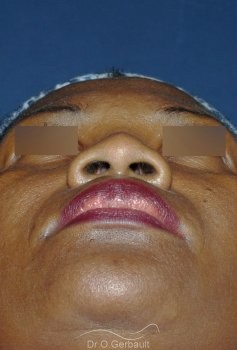 Rhinoplastie structurelle ethnique, Dr Gerbault vue de face avant