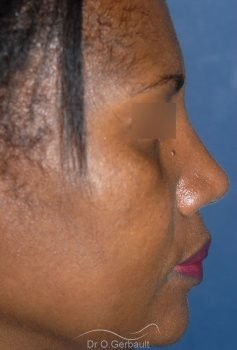 Rhinoplastie structurelle ethnique, Dr Gerbault vue de profil apres