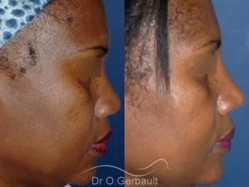 Rhinoplastie structurelle ethnique, Dr Gerbault vue de profil avant-apres