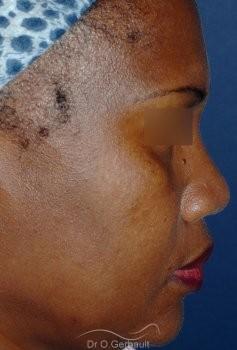 Rhinoplastie structurelle ethnique, Dr Gerbault vue de profil avant