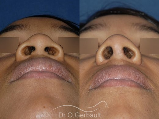 Rhinoplastie structurelle ethnique vue de face avant-apres