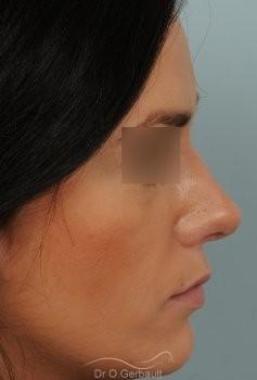 Rhinoplastie sur peau épaisse et pointe trop ronde vue de profil apres