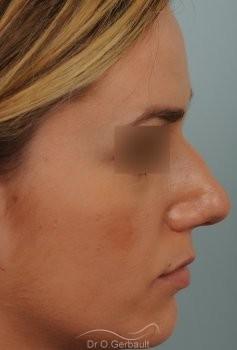 Rhinoplastie sur peau épaisse et pointe trop ronde vue de profil avant
