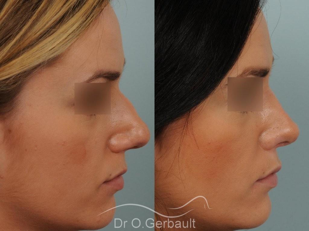 Rhinoplastie sur peau épaisse et pointe trop ronde vue de profil duo
