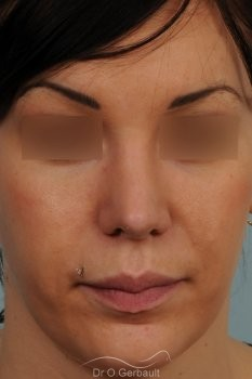 Rhinoplastie sur peau épaisse, nez trop projeté vue de face apres