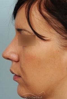 Rhinoplastie sur peau épaisse, nez trop projeté vue de profil apres