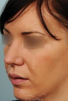 Rhinoplastie sur peau épaisse, nez trop projeté vue de quart apres