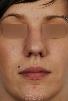 Rhinoplastie sur peau épaisse, nez trop projeté vue de face avant