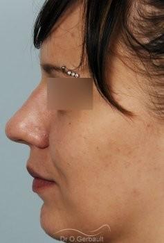 Rhinoplastie sur peau épaisse, nez trop projeté vue de profil avant