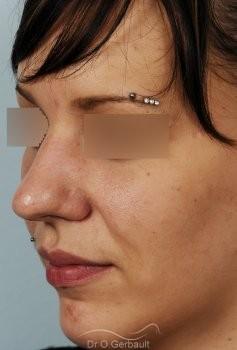 Rhinoplastie sur peau épaisse, nez trop projeté vue de quart avant