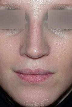 Rhinoplastie sur peau fine, Bec de Corbin vue de face apres
