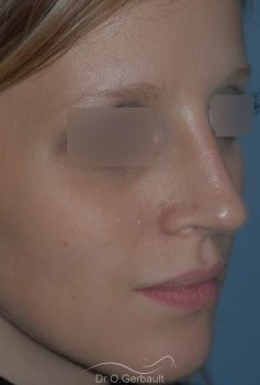 Rhinoplastie sur peau fine, Bec de Corbin vue de quart apres