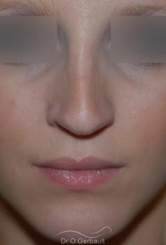 Rhinoplastie sur peau fine, Bec de Corbin vue de face avant