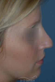 Rhinoplastie sur peau fine, Bec de Corbin vue de profil avant