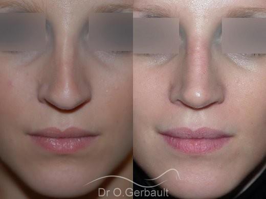 Rhinoplastie sur peau fine, Bec de Corbin vue de face duo