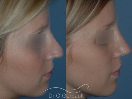 Rhinoplastie sur peau fine, Bec de Corbin vue de profil duo