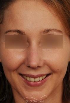 Rhinoplastie sur Peau fine, Bosse et Pointe de nez bulbeuse vue de face apres