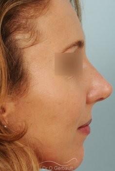 Rhinoplastie sur Peau fine, Bosse et Pointe de nez bulbeuse vue de profil apres
