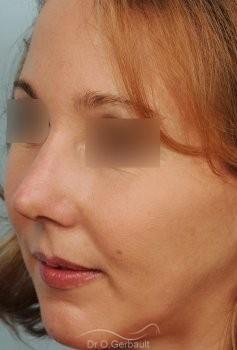 Rhinoplastie sur Peau fine, Bosse et Pointe de nez bulbeuse vue de quart apres