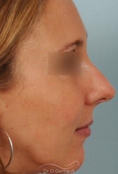 Rhinoplastie sur Peau fine, Bosse et Pointe de nez bulbeuse vue de profil avant