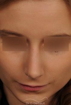 Rhinoplastie sur peau fine et bosse vue de face apres