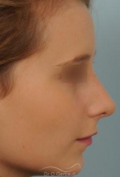 Rhinoplastie sur peau fine et bosse vue de profil apres