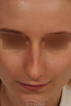 Rhinoplastie sur peau fine et bosse vue de face avant