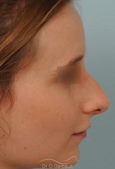 Rhinoplastie sur peau fine et bosse vue de profil avant