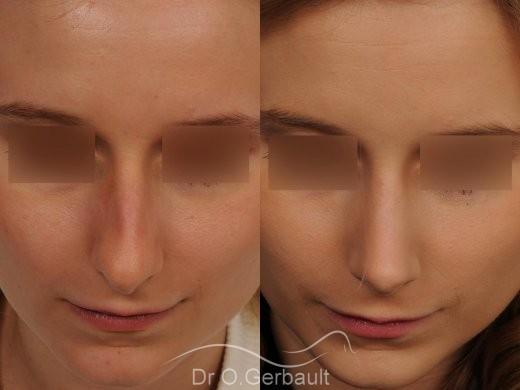 Rhinoplastie sur peau fine et bosse vue de face duo