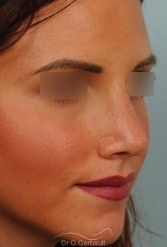 Rhinoplastie sur peau fine vue de quart apres