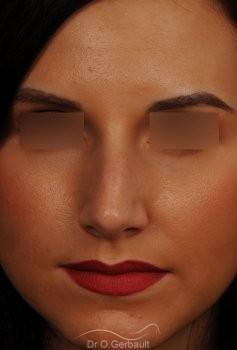 Rhinoplastie sur peau fine vue de face avant
