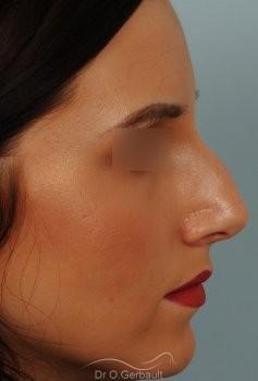 Rhinoplastie sur peau fine vue de profil avant