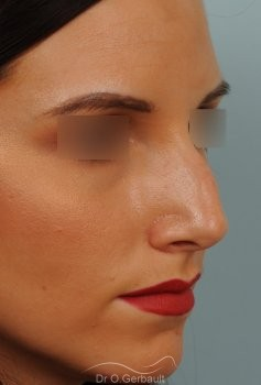 Rhinoplastie sur peau fine vue de quart avant