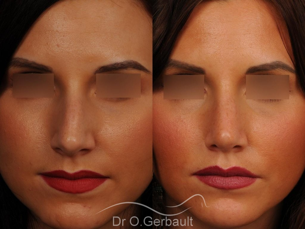 Rhinoplastie sur peau fine vue de face duo