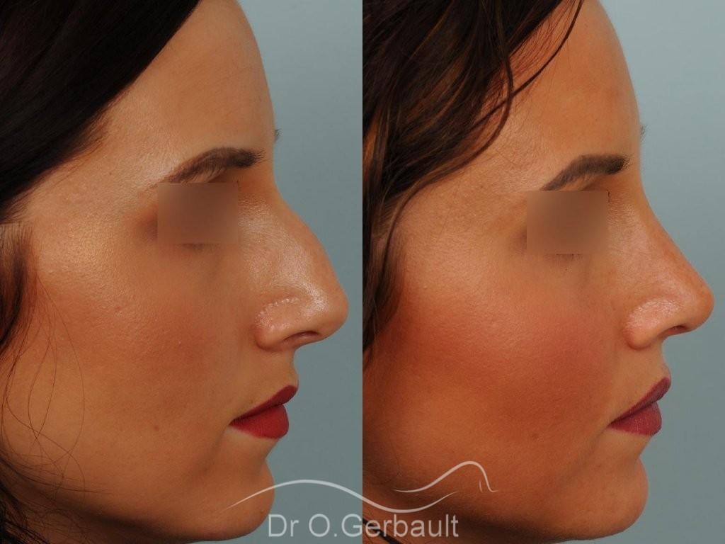 Rhinoplastie sur peau fine vue de profil duo