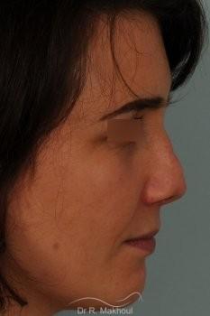 Rhinoplastie tertiaire vue de profil avant