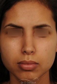 Rhinoplastie ultrasonique Ethnique structurelle vue de face apres